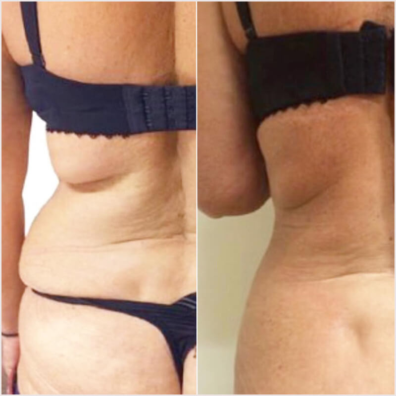 Before and after photos showing effective fat reduction by fat freezing treatments